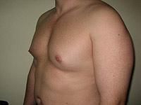 Операција за уклањање гинекомастија