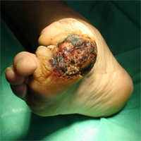 What is the diabetic foot