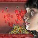 Główne objawy i leczenie zespołu antyfosfolipidowego