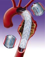 Główne objawy i metody leczenia tętniaków aorty piersiowej