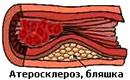 Atherosclerosis der unteren Extremitäten