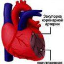 aterosklerose af koronararterierne i hjertet