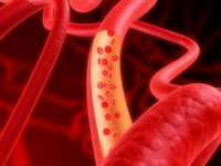 aortic atherosclerosis