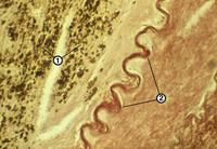 A aterosclerose da aorta