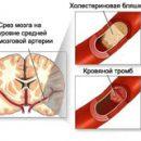 cerebrale atherosclerose