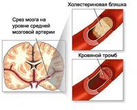 Atherosclerosis der Hirngefäße