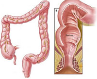 Кључни симптоми фистуле ректума