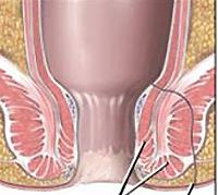 Komplikationen bei Morbus Crohn und Behandlung
