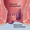 како да живи без хемороида