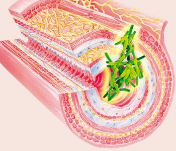 ziekte van Crohn