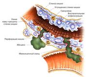 Le traitement et la prévention de la maladie de Crohn