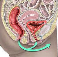 Przewlekłe zapalenie pęcherza moczowego