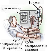 comme l'hémodialyse