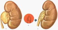 Megaureter børn. Kirurgisk behandling megaureter