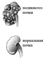Anomalies de la structure rénale
