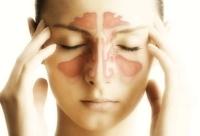 signs of sinusitis