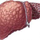 What is cirrhosis of the liver