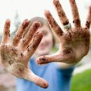 summer and hepatitis or disease of dirty hands