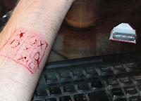 Ajuda com a mutilação