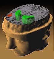 Zasady leczenia schizofrenii