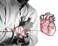 angină pectorală Simptome