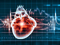 Treatment of atrial fibrillation independently remove the attack