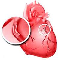 el tratamiento de la angina remedios populares