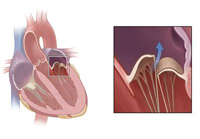 Malformations of the mitral valve