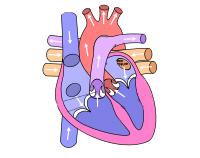 zastawki aortalnej