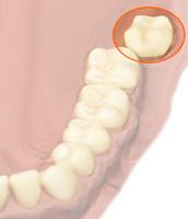 Infekcyjnego zapalenia wsierdzia w stomatologii