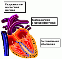 restrictieve cardiomyopathie