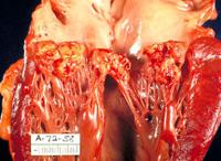 Главни симптоми инфективног ендокардитис
