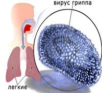 Infekcyjnego zapalenia wsierdzia u dzieci