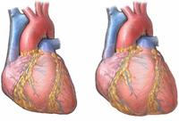 Simptomele de cardiomiopatie alcoolică