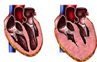 The causes of dilated cardiomyopathy