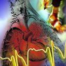 wie von einem Herzinfarkt zu entkommen