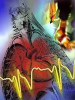 كيفية الهروب من أزمة قلبية