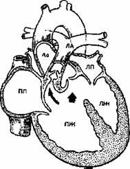 vicios acompañada de cianosis