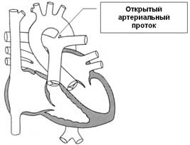 урођене срчане мане су патента дуцтус артериосус