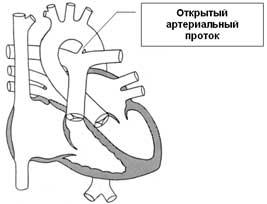 عيوب خلقية في القلب: القناة الشريانية السالكة، والعيوب الأذيني والبطيني حاجزي