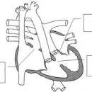 angeborene Herzkrankheit Pulmonalstenose, Atrioventrikularkanal