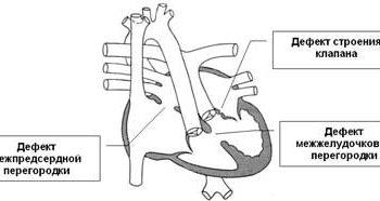 doença cardíaca congênita estenose pulmonar, canal atrioventricular