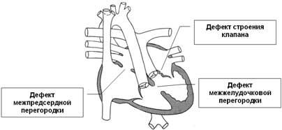 Angeborene Herzkrankheit: die Atrioventrikularkanal Stenose der Lungenarterie