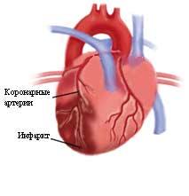 Deja de miocardio