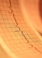 auto-soins à une attaque de l'angine de poitrine