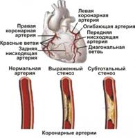 Zelfhulp bij een aanval van angina pectoris