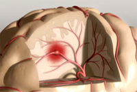 causes and risk factors for coronary heart disease