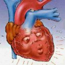 heart arrhythmias