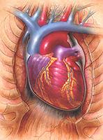 Crise cardiaque: un guide de survie