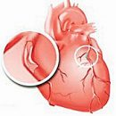 Pięć mitów o mięśnia sercowego